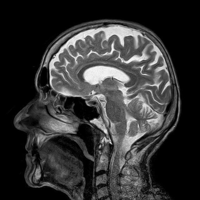 saggitalis MRI